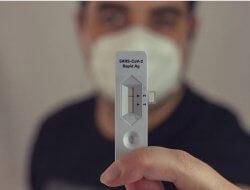 Bantah Pungli Rapid Test Antigen, Begini Penjelasan Dinkes Sambas